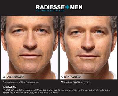 radiesse for men