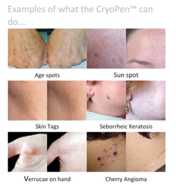 Cryopen ejemplo tratamientos